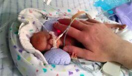 Ārsts ielika priekšlaicīgi  dzimušo mazuli sendviča maisiņā. Kādēļ ārsts tā rīkojās?